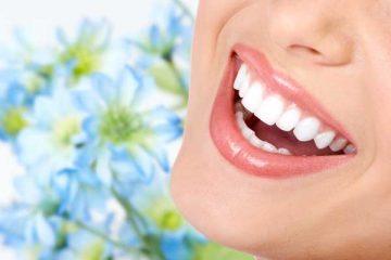 Blanchiment dentaire Smile & Smile ®