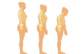 image ostéoporose 1